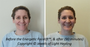 Look and feel younger with the Energetic Facelift